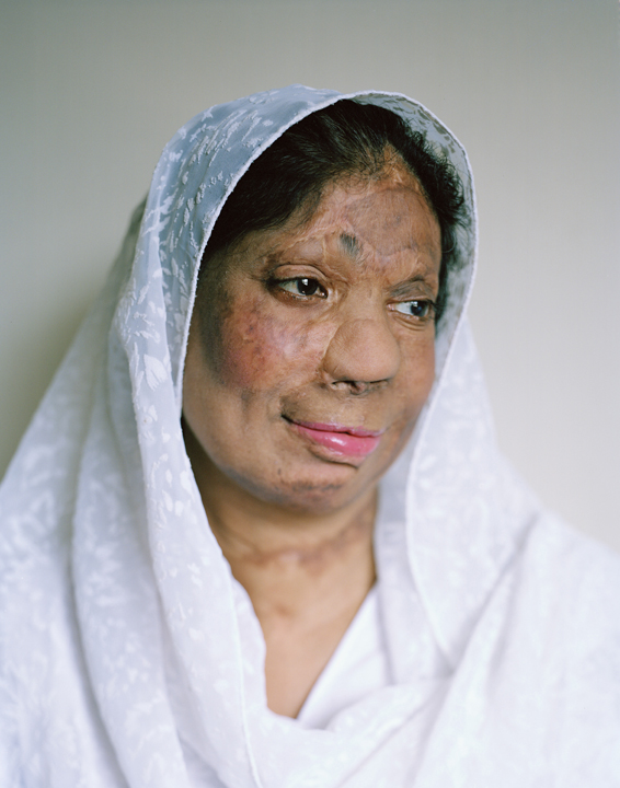 acid attacks, acid violence