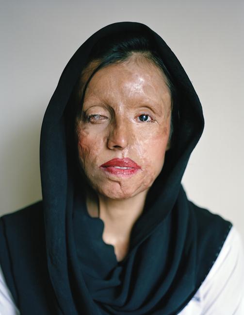 saira laiqat, acid attacks, violence against women, women's empowerment, beauty, women's empowerment
