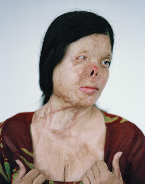 acid attacks, acid violence