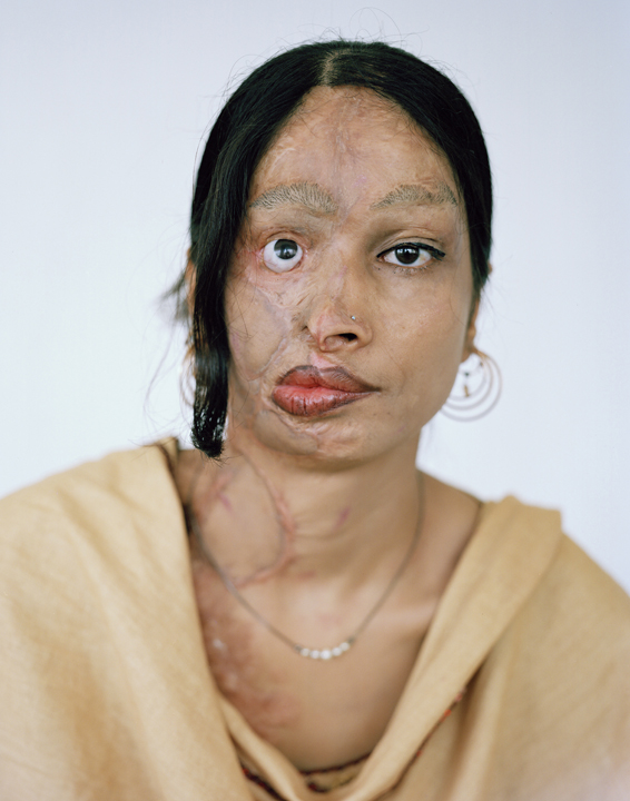 Are muslim women acid attacks advise
