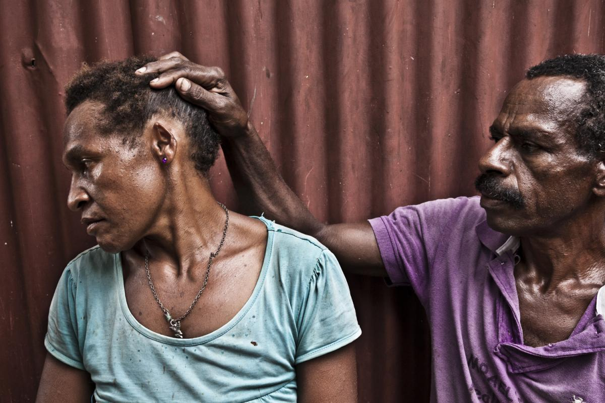 Richard Bal (45) shows disfigured ear of his wife Agita Bal (32) in the Morobe block, Port Moresby.